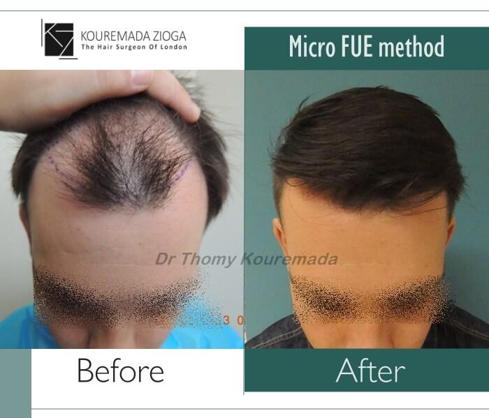 1.hair-transplant-micro-fue-dr kouremada-zioga