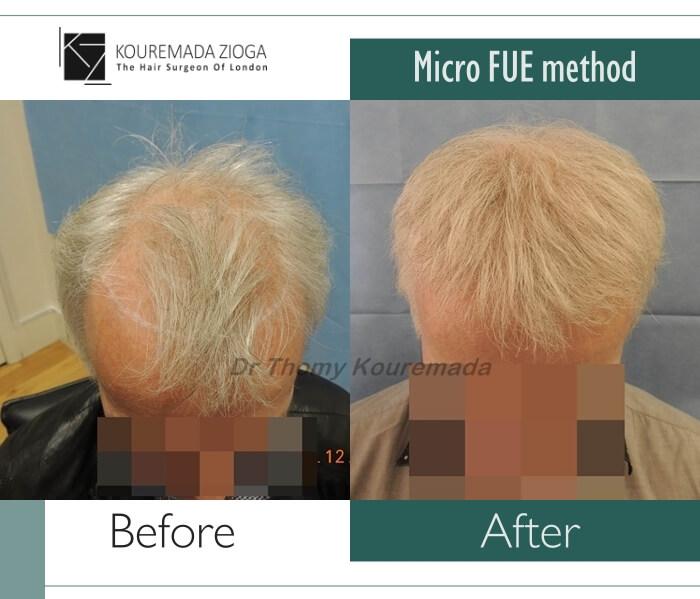 10.hair-transplant-micro-fue-dr kouremada-zioga
