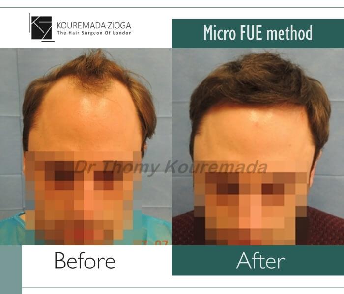 115 hair-transplant-unshaven-fue-dr kouremada-zioga