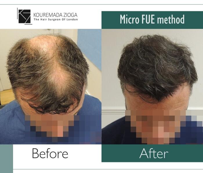112 hair-transplant-unshaven-fue-dr kouremada-zioga
