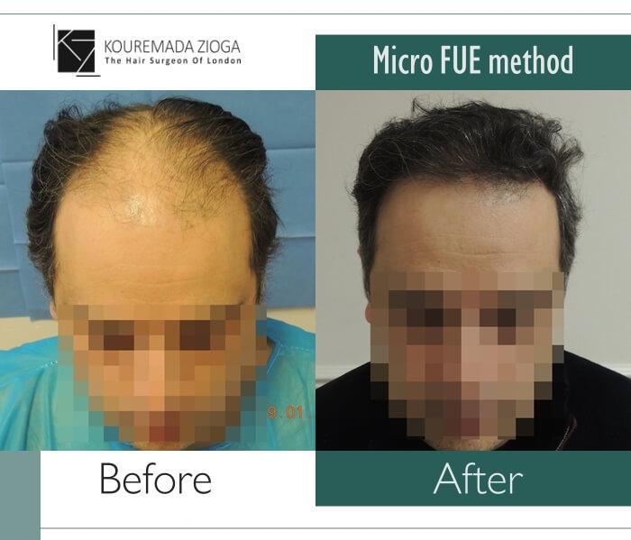 114.hair-transplant-unshaven-fue-dr kouremada-zioga
