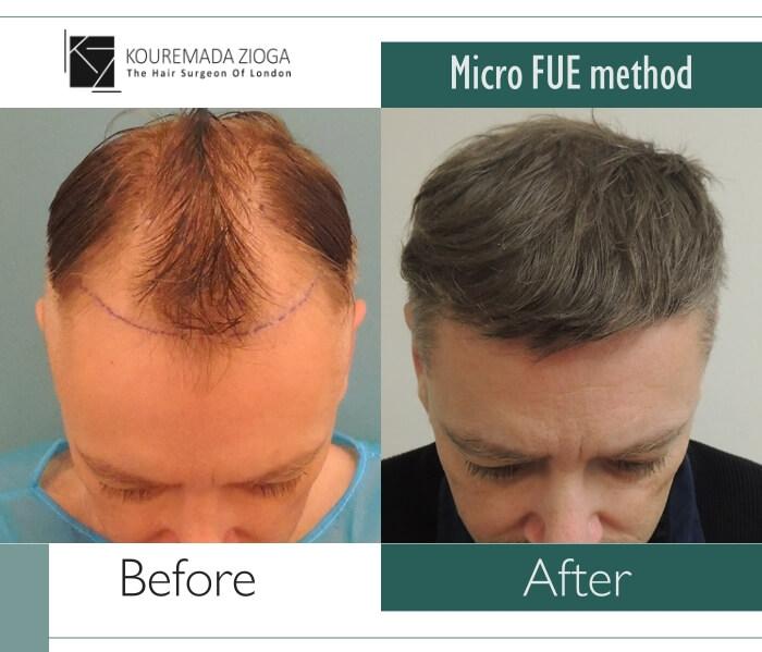14.hair-transplant-unshaven-fue-dr kouremada-zioga