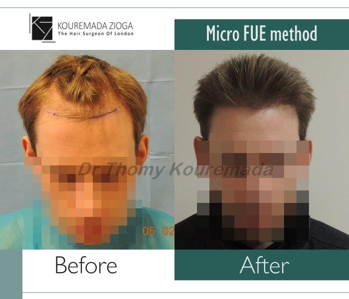 15.hair-transplant-micro-fue-dr kouremada-zioga