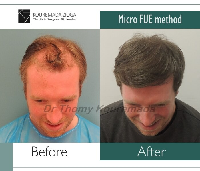 16.hair-transplant-micro-fue-dr kouremada-zioga