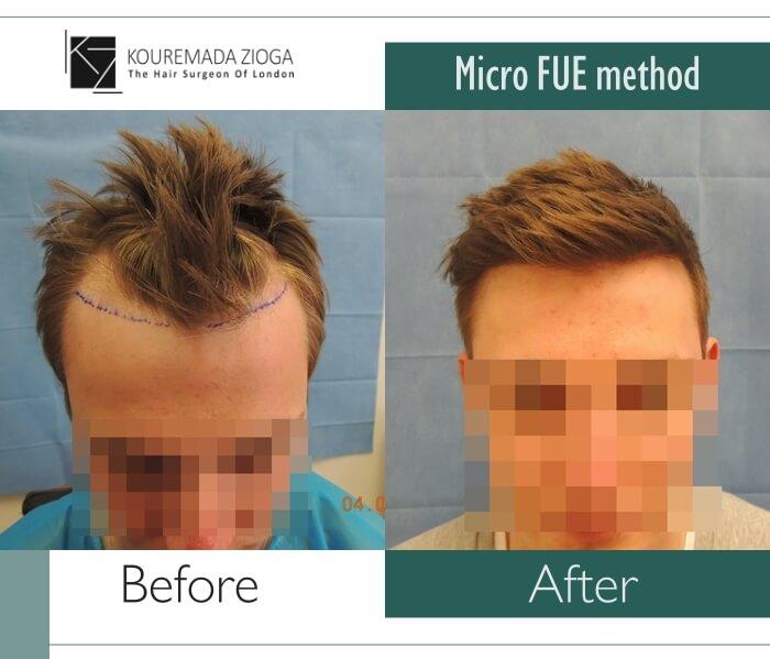 18.hair-transplant-micro-fue-dr kouremada-zioga