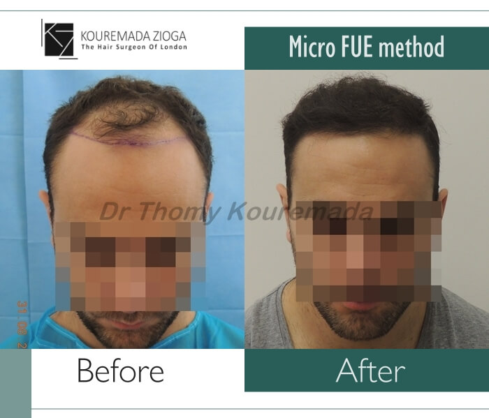 19.hair-transplant-micro-fue-dr kouremada-zioga