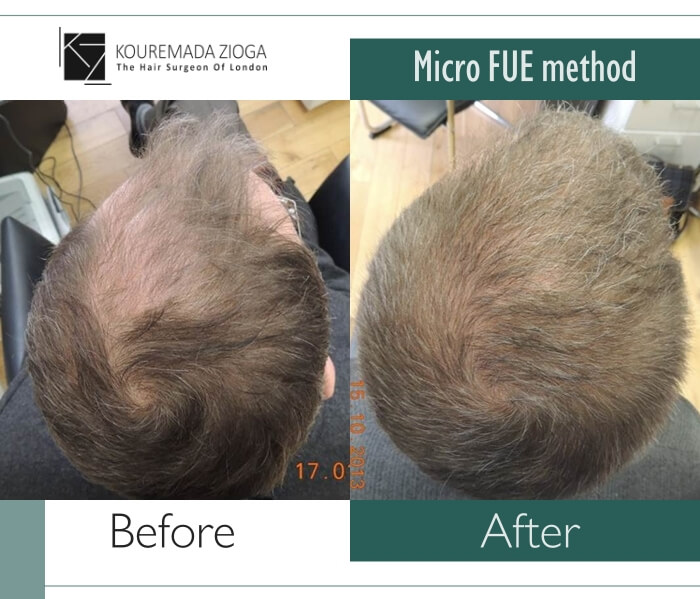 2.hair-transplant-micro-fue-dr kouremada-zioga
