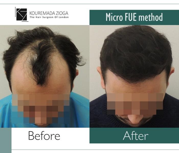 20.hair-transplant-micro-fue-dr kouremada-zioga