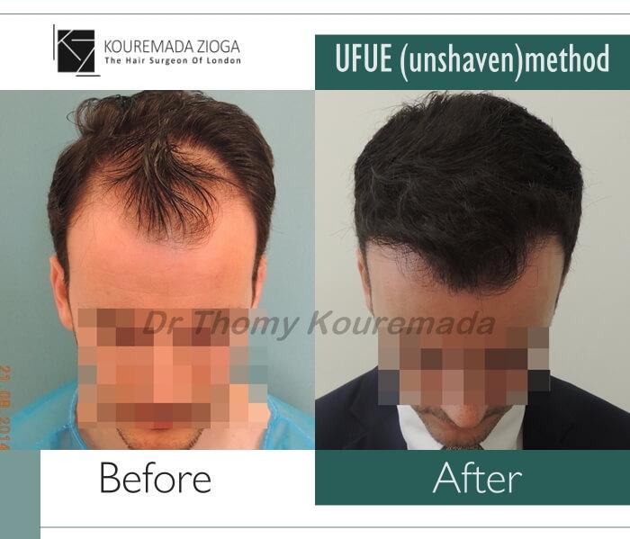 24.hair-transplant-unshaven-fue-dr kouremada-zioga.