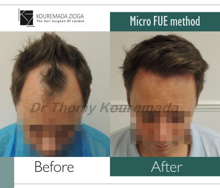 25.hair-transplant-unshaven-fue-dr kouremada-zioga.