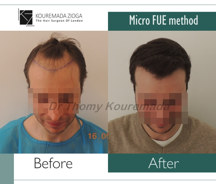 27.hair-transplant-micro-fue-dr kouremada-zioga