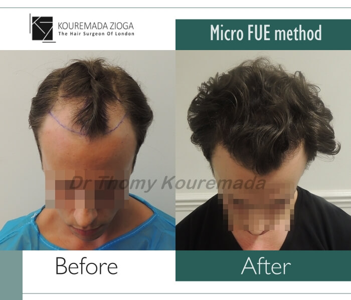 28.hair-transplant-micro-fue-dr kouremada-zioga