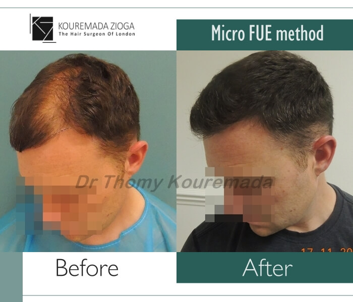 hair-transplant-unshaven-fue-dr kouremada-zioga