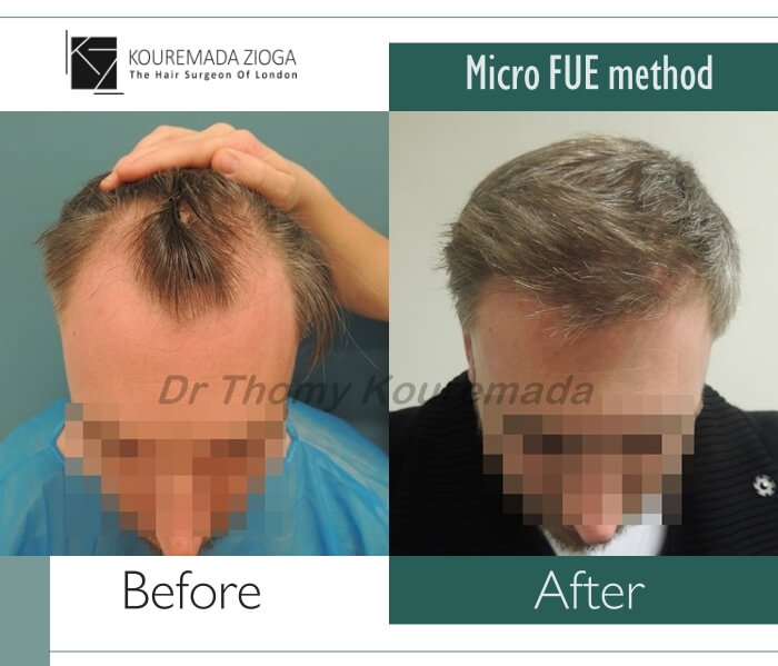 30.hair-transplant-micro-fue-dr kouremada-zioga
