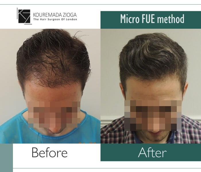 hair-transplant-unshaven-fue-dr kouremada-zioga 14