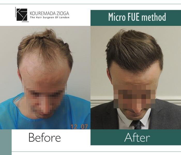 hair-transplant-unshaven-fue-dr kouremada-zioga 13