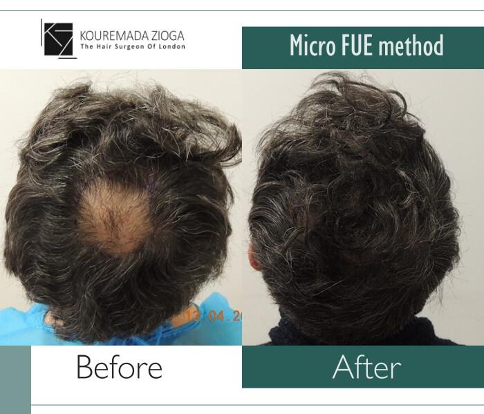 hair-transplant-unshaven-fue-dr kouremada-zioga 12