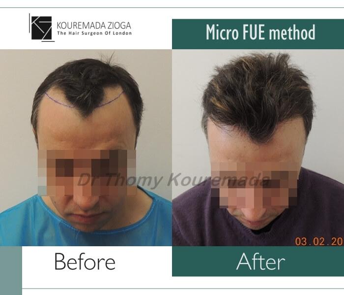 hair-transplant-micro-fue-dr kouremada-zioga 11