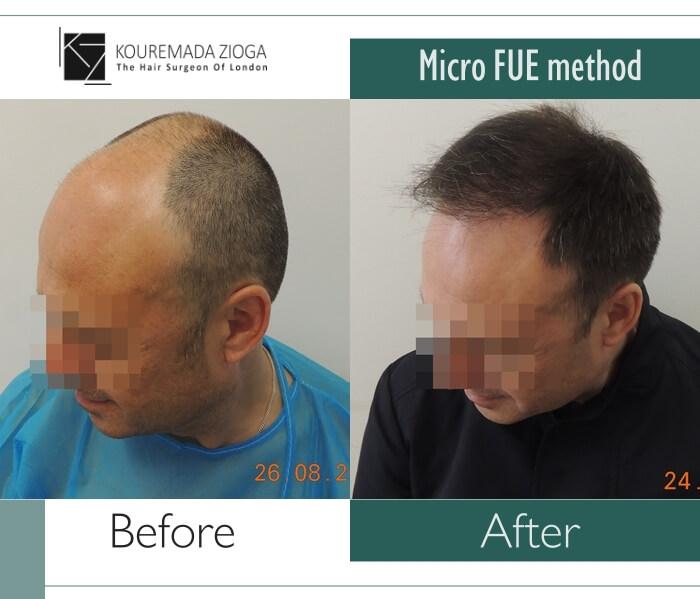 hair-transplant-micro-fue-dr kouremada-zioga 10
