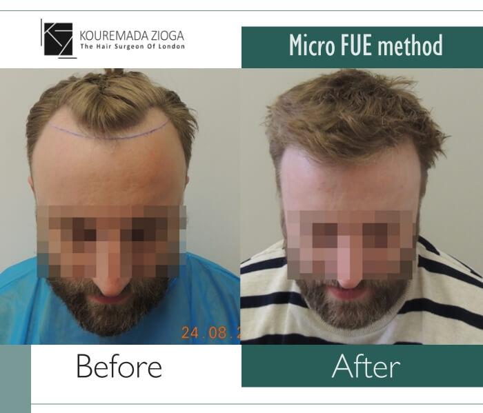 hair-transplant-micro-fue-dr kouremada-zioga-4