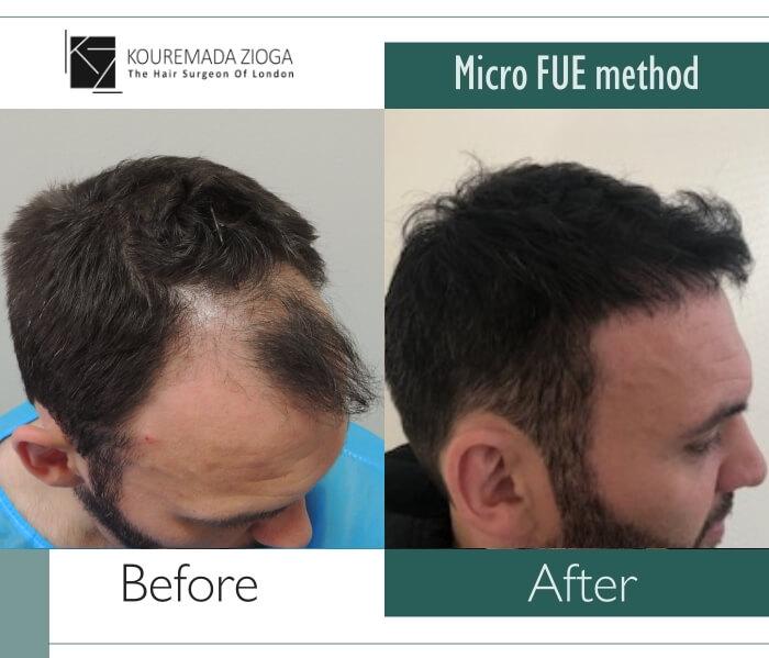hair-transplant-micro-fue-dr kouremada-zioga 2