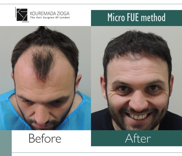 hair-transplant-micro-fue-dr kouremada-zioga 1