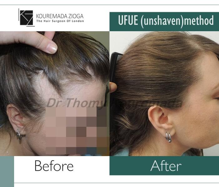 6.hair-transplant-unshaven-fue-dr kouremada-zioga
