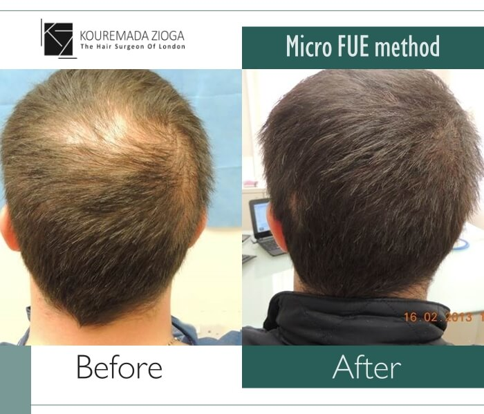 8.hair-transplant-micro-fue-dr kouremada-zioga