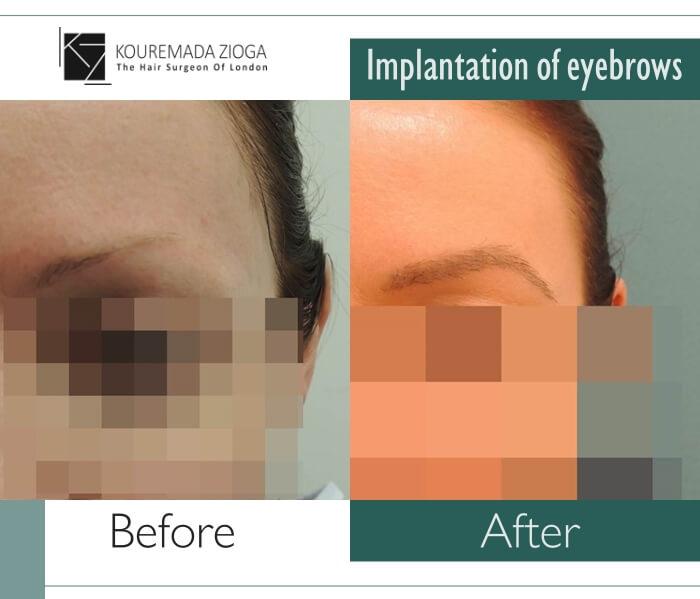 9.hair transplant micro fue dr kouremada zioga Implantation of eyebrow