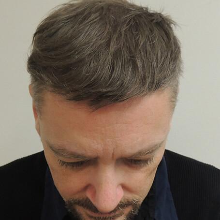 after-hair-transplant-fue-dr-kouremada-london