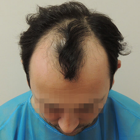 before-hair-transplant-fue-dr-kouremada