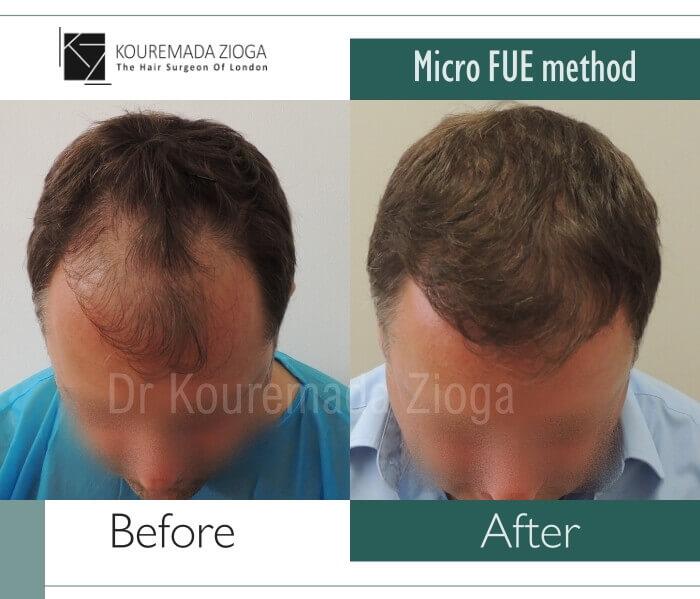 45 hair transplant micro fue dr kouremada zioga london