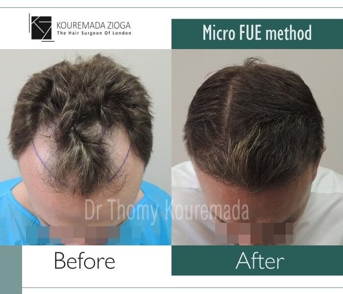 49 hair transplant micro fue dr kouremada zioga london