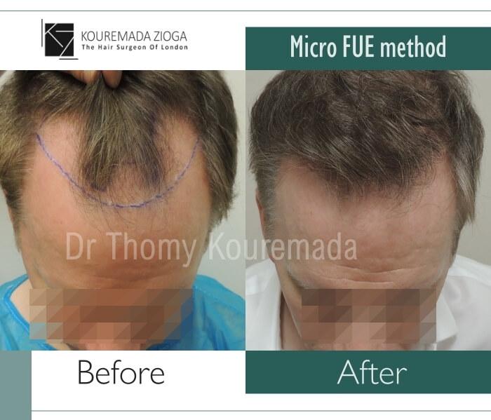 50 hair transplant micro fue dr kouremada zioga london