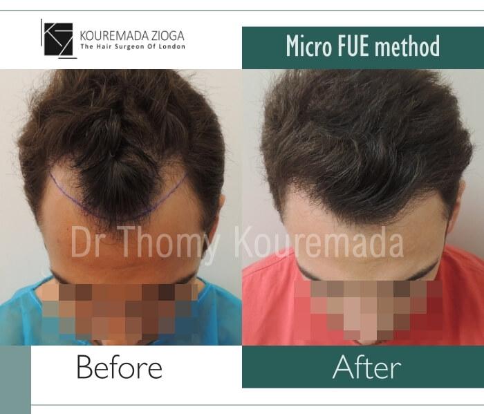 53 hair transplant micro fue dr kouremada zioga london