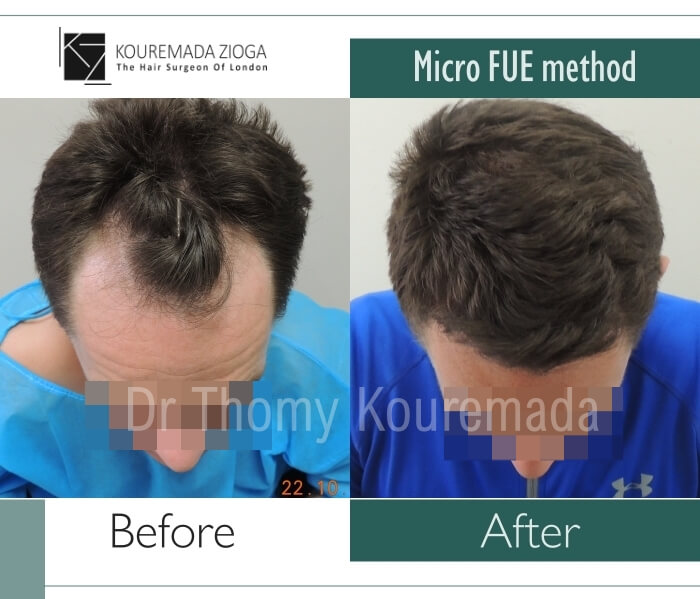 54 hair transplant micro fue dr kouremada zioga london