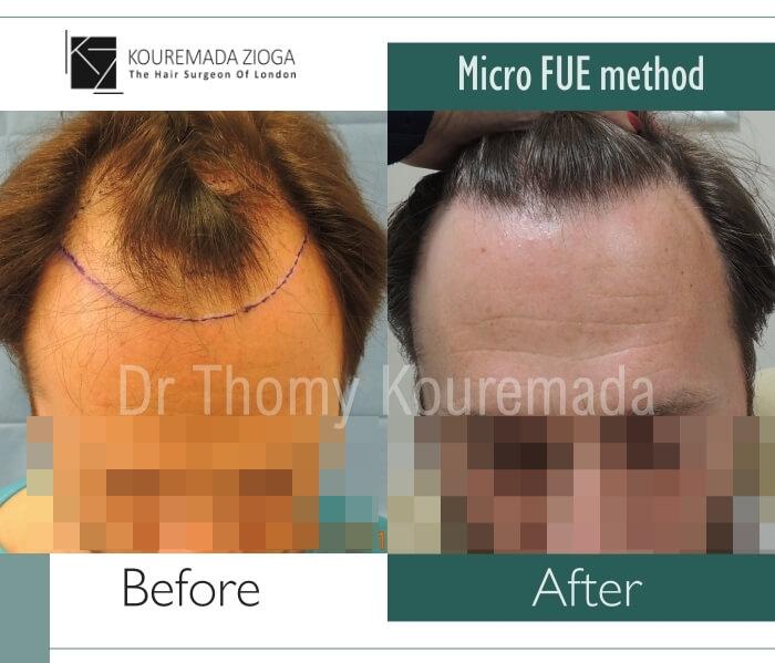 55 hair transplant micro fue dr kouremada zioga london